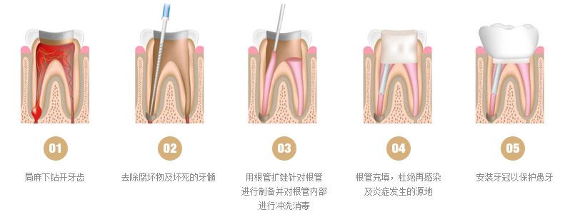 牙齿根管治疗多钱