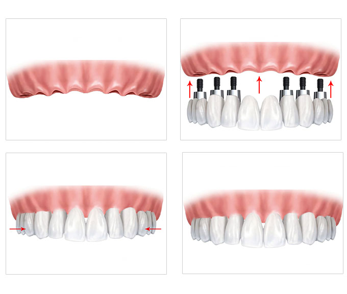 南京康贝佳口腔医院医生提示,全口种植牙不是所有人都能做的,种植牙前,医生会对患者口腔进行详细的检查,如有口腔疾病需要进行规范的治疗,如有残根则需要进行适当的拔牙。一般情况下全口种植牙的过程包括以下几个部分:   1.第一阶段:术前检查和处理阶段。治疗牙周病去除不良假牙,调改和纠正不良咬合关系以及确定种植体数目和位置,制作模板;选择种植体;以及选择设计附着体固位形式。这个阶段所需时间视患者口腔情况而异。如果患者的情况比较复杂,所需要的时间就会比较长。   2.