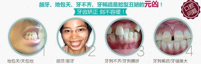 为什么说矫正牙齿要拔牙