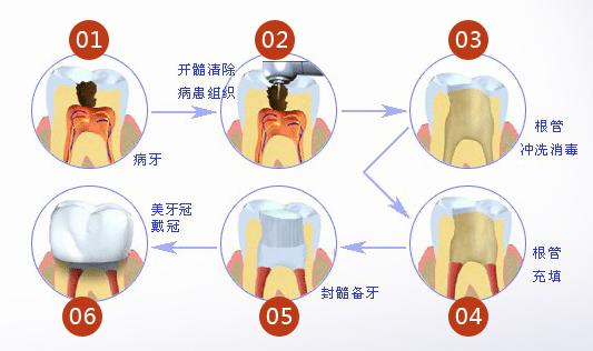根管治疗包括三大步骤:      根管预备,根管消毒